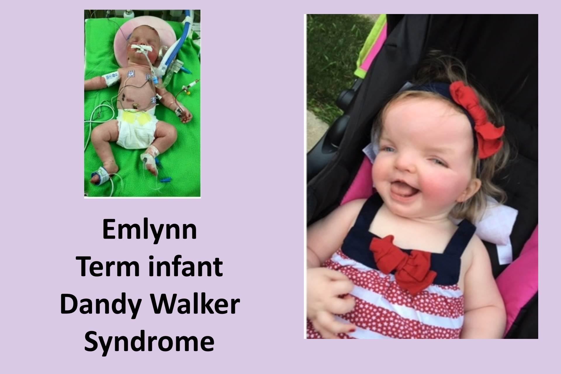 Hallway of Hope: Emlynn