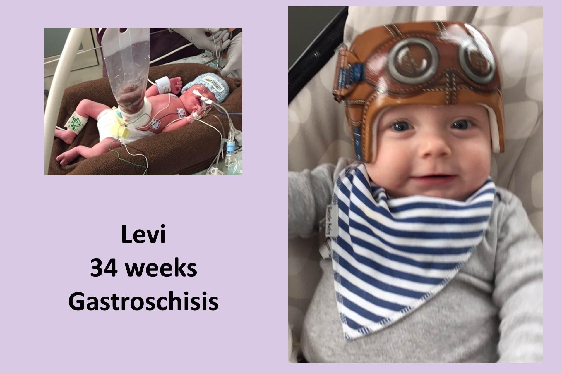 Hallway of Hope: Levi